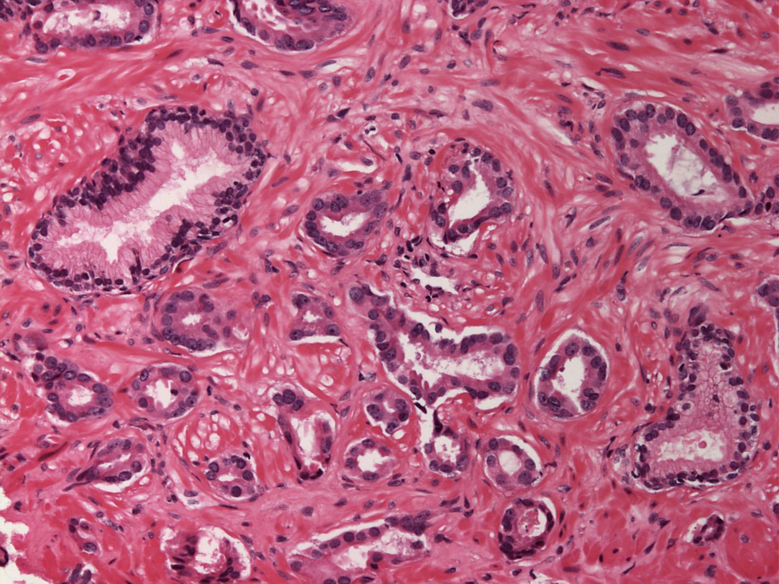 Medical Pictures Info – Adenocarcinoma Аденокарцинома Легкого
