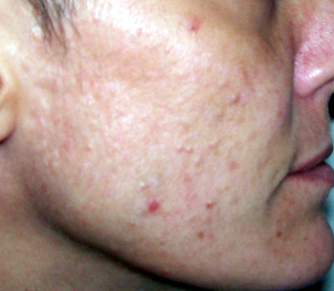 acne adult in