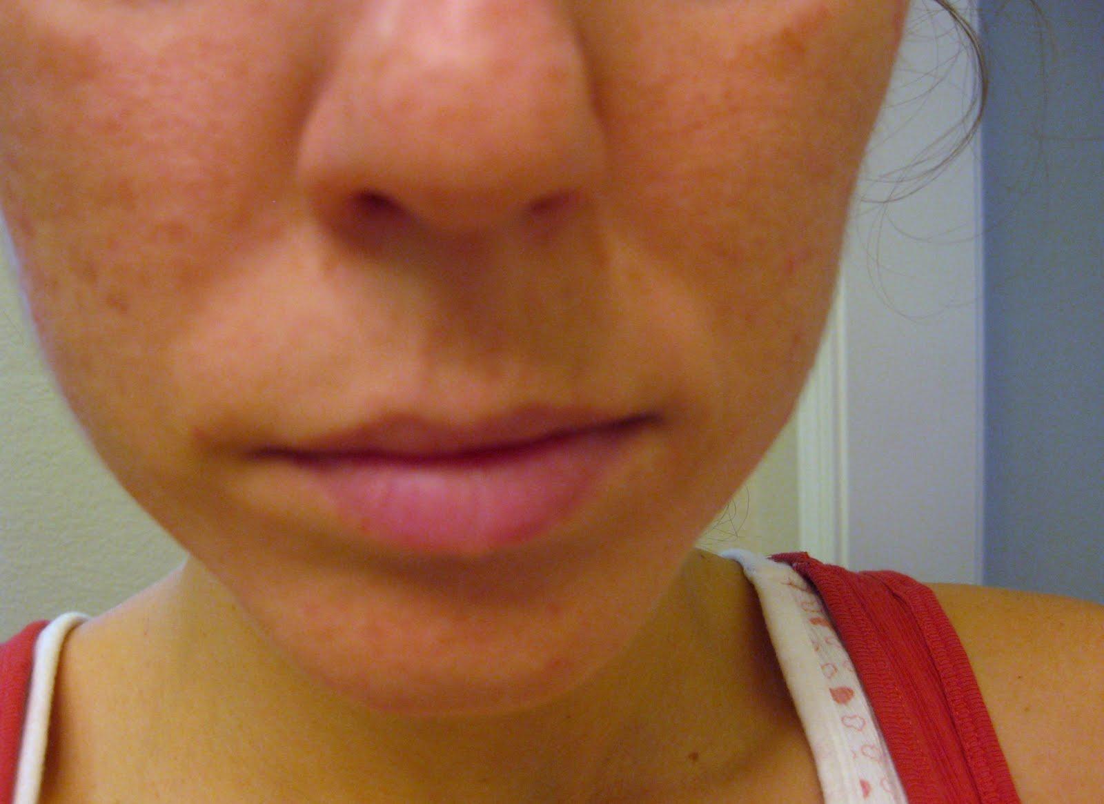 acne adult medicine