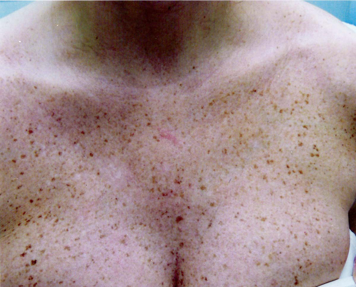 What do liver spots look like? - Skin Discoloration ...