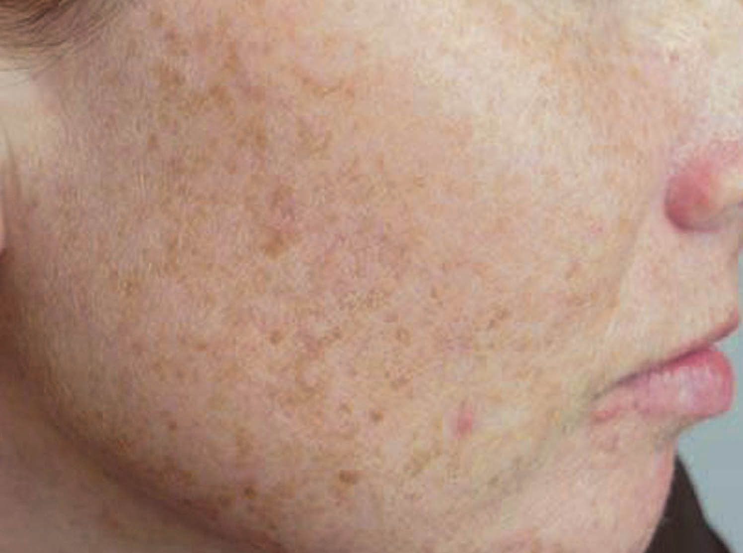 Brown Spot On Face Removal Natural