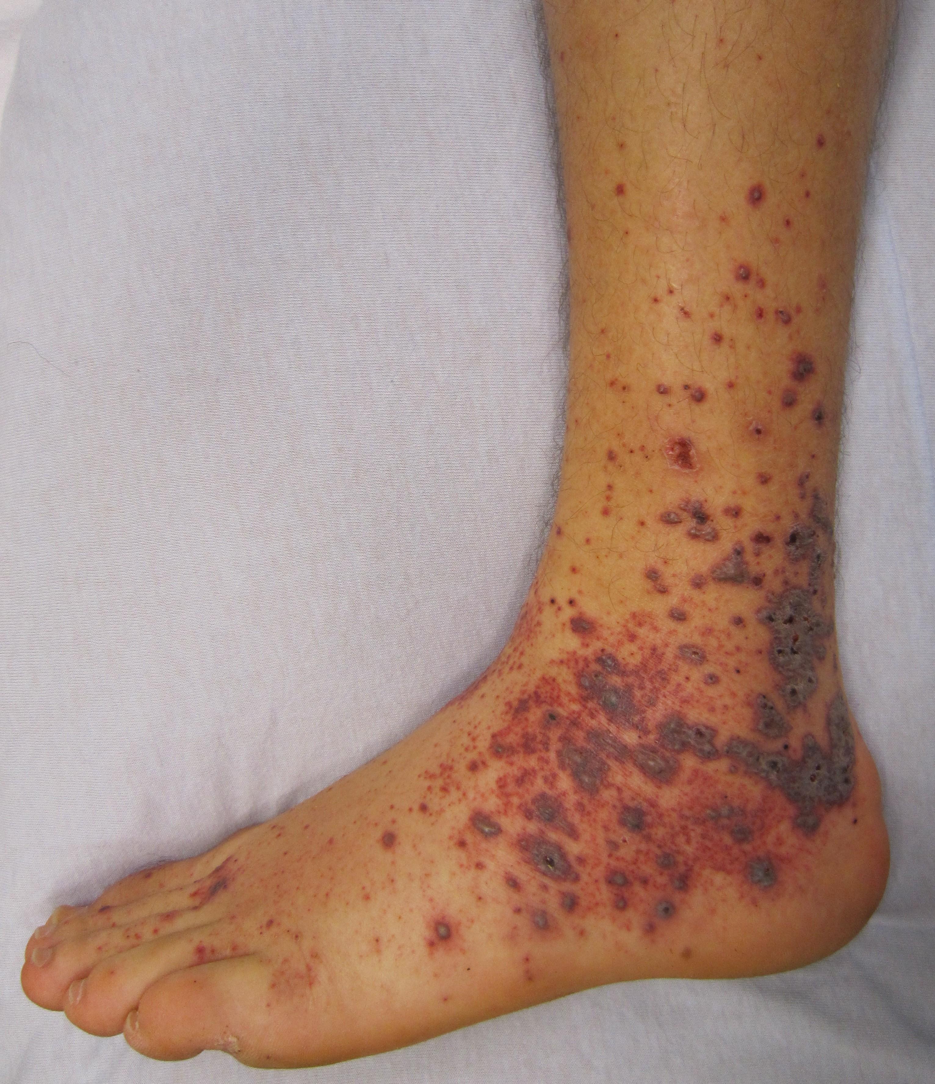 Allergic Purpura