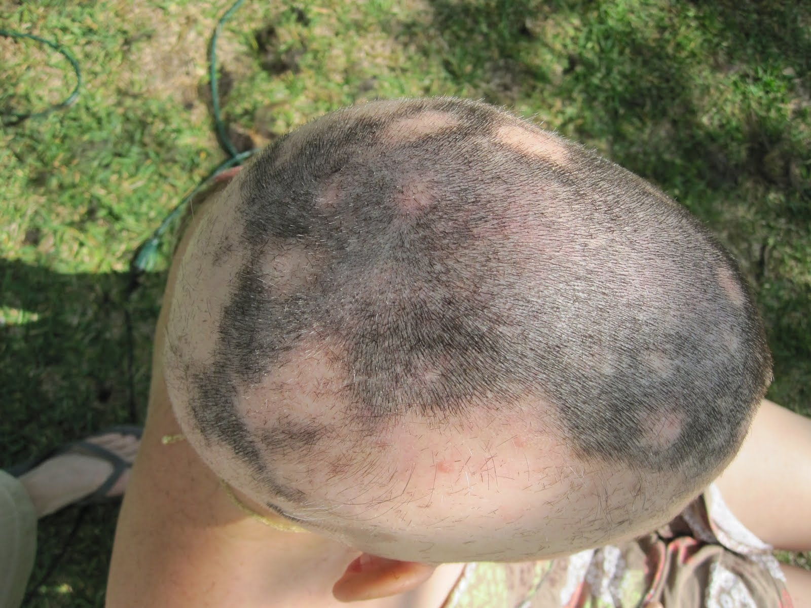 medical pictures info � alopecia areata