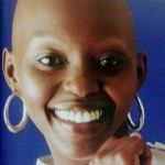 Alopecia Totalis on Alopecia Totalis   Alopecia Areata Totalis   Alopecia Totalis
