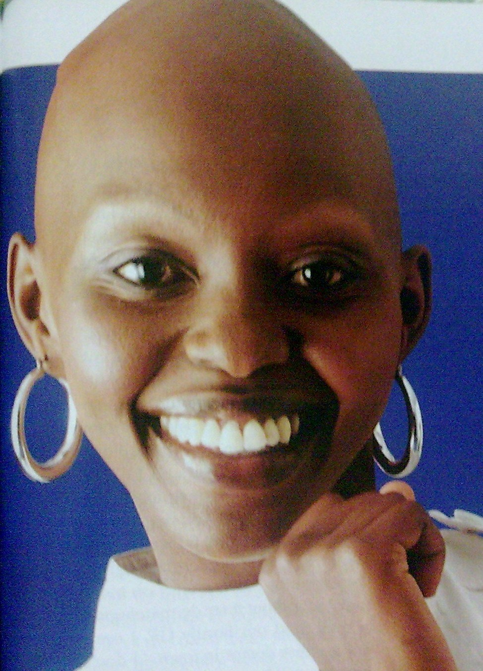Medical Pictures Info Alopecia Totalis