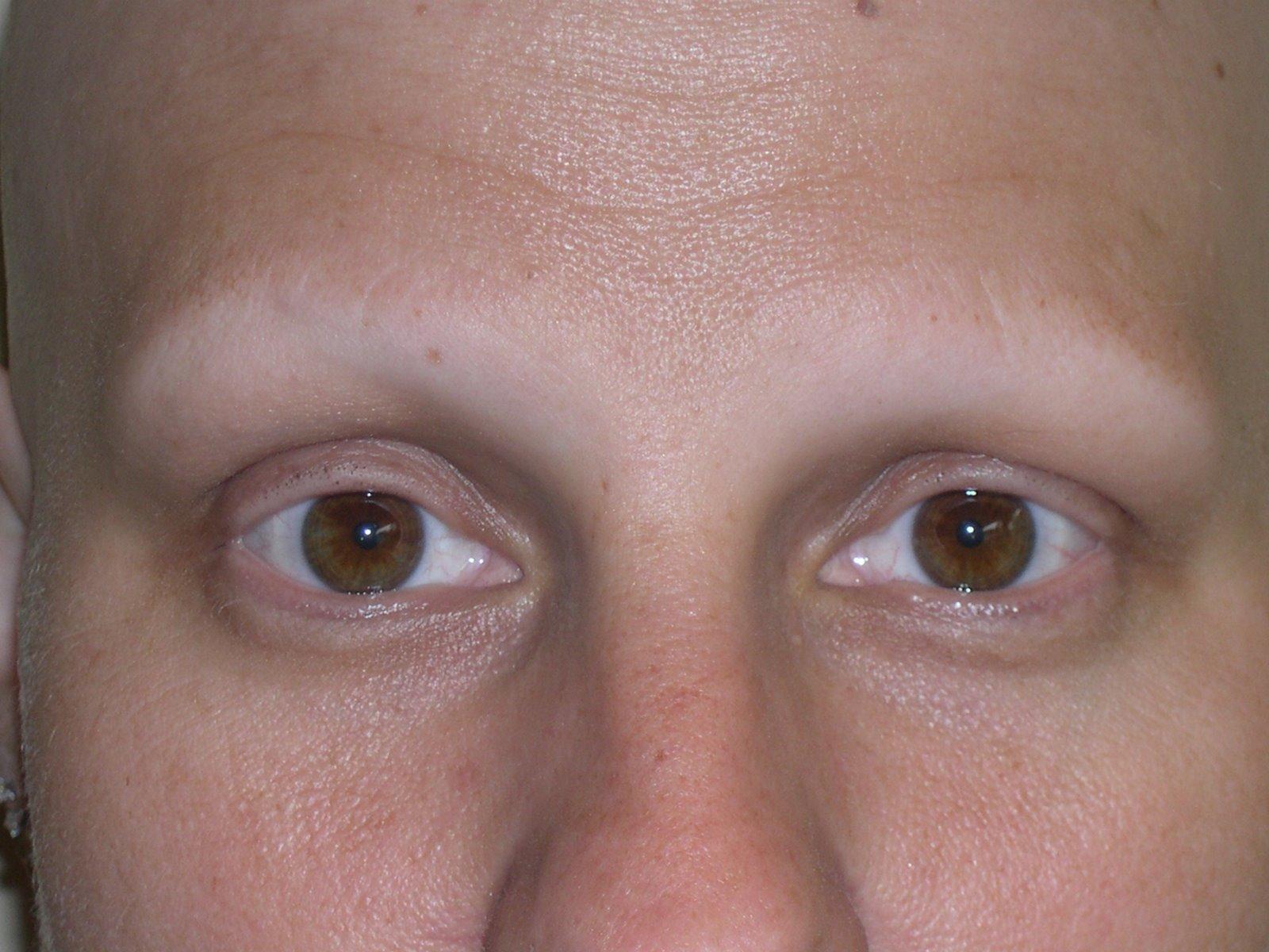 Alopecia Totali... Alopecia Areata Totalis