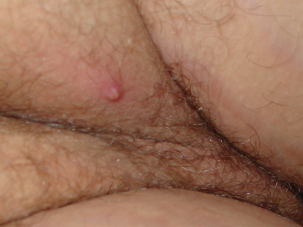 Genital Warts Pictures and photos - STD Information