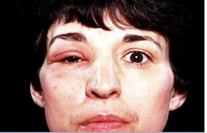 medical pictures info � angioneurotic edema