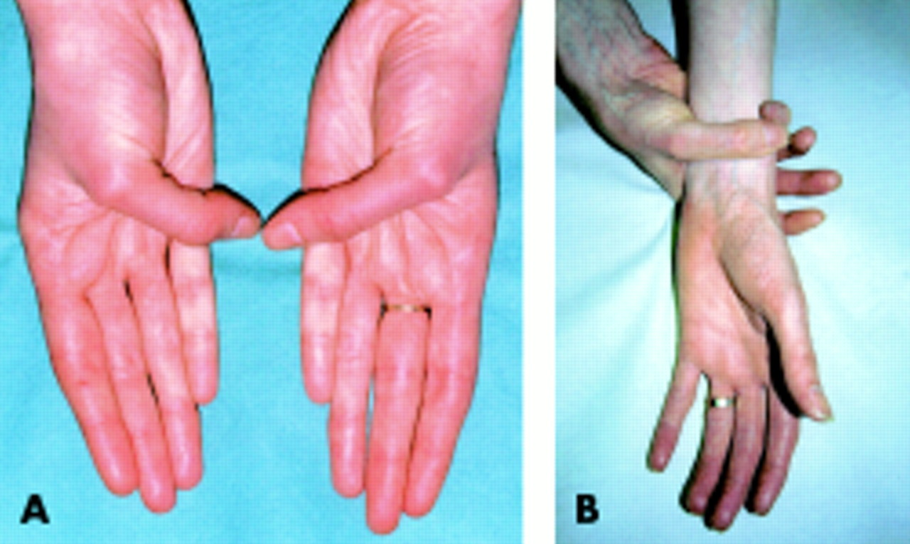 marfan syndrome This poor survival was demonstrated in a series of 257 patients with the marfan  syndrome the average age at death for the 72 deceased.