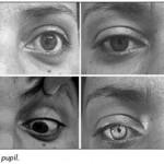 Argyll Robertson Pupil