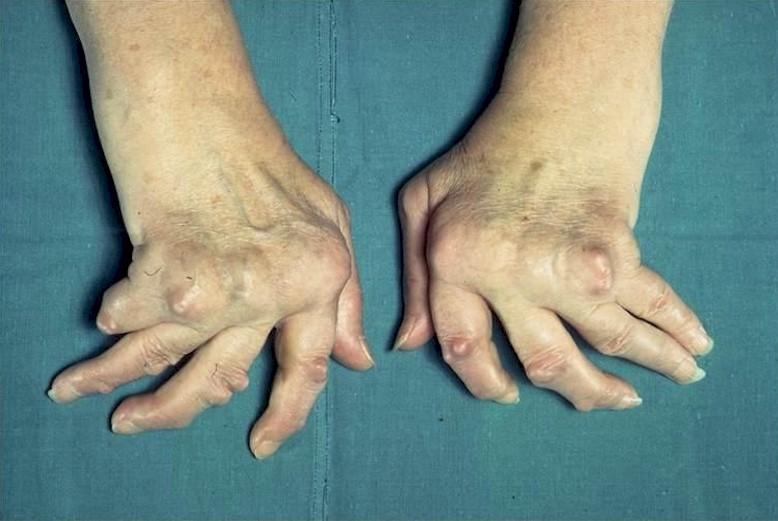 Артрит Артроз Коленного Сустава Симптомы