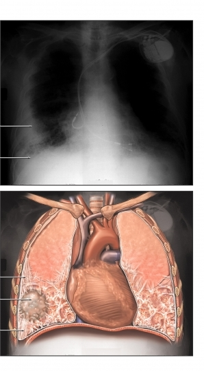 medical pictures info � asbestosis