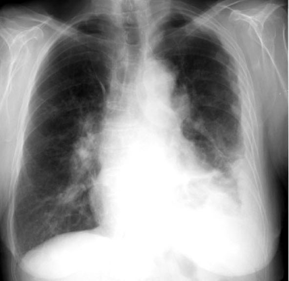 Medical Pictures Info Asbestosis