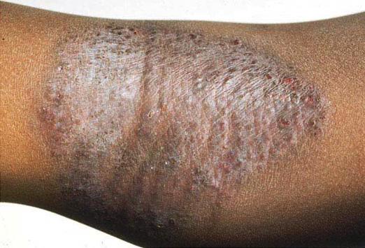 Dermatitis Herpetiformis Scalp