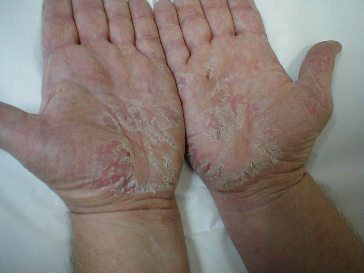Exfoliative dermatitis hands