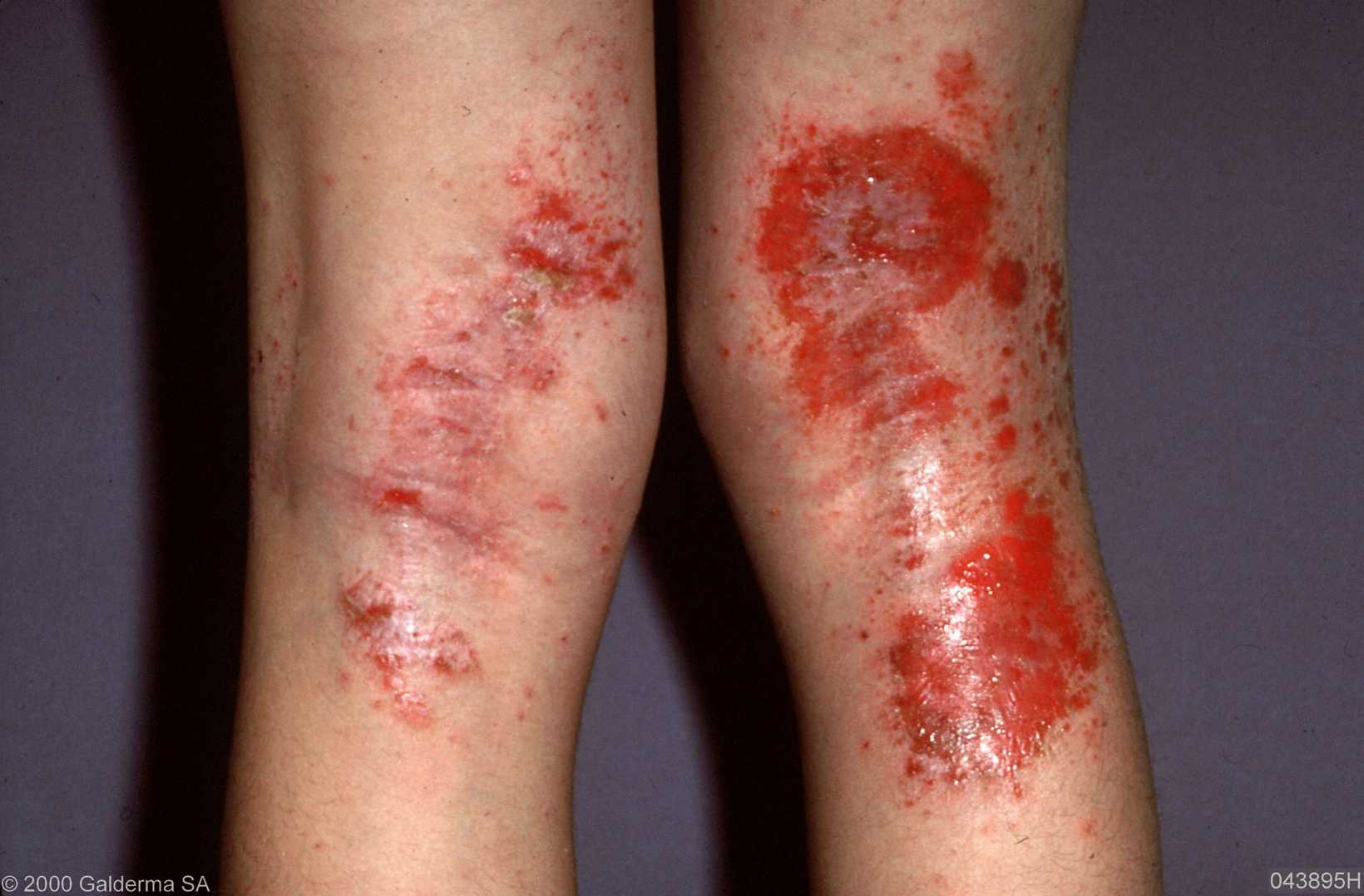 medical pictures info – atopic dermatitis, Human Body