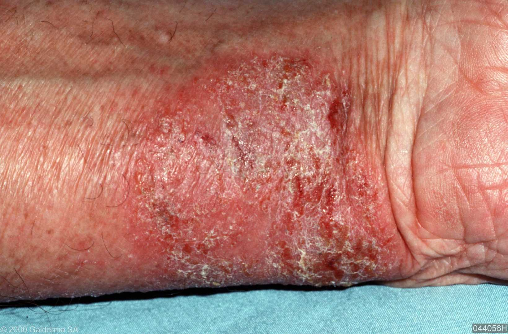 atopic dermatitis treatment #11