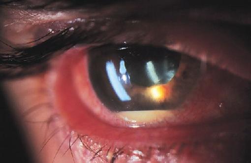 Medical Pictures Info Autoimmune Uveitis