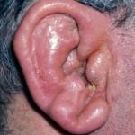 Bacterial Perichondritis