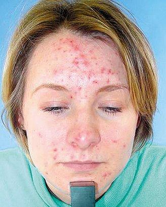 Heal acne cyst