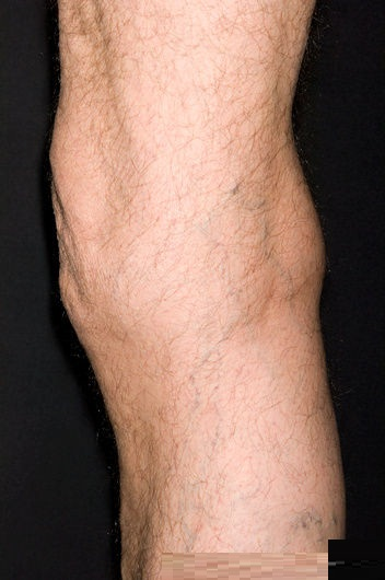 Pics Photos - Bartholin Cyst Picture Image