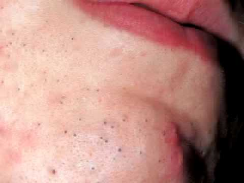 Difference Between Blackhead and Whitehead