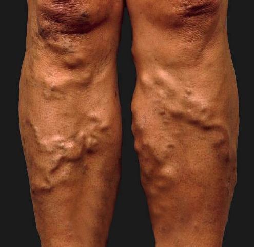 Blood Clot Leg Varicose Vein