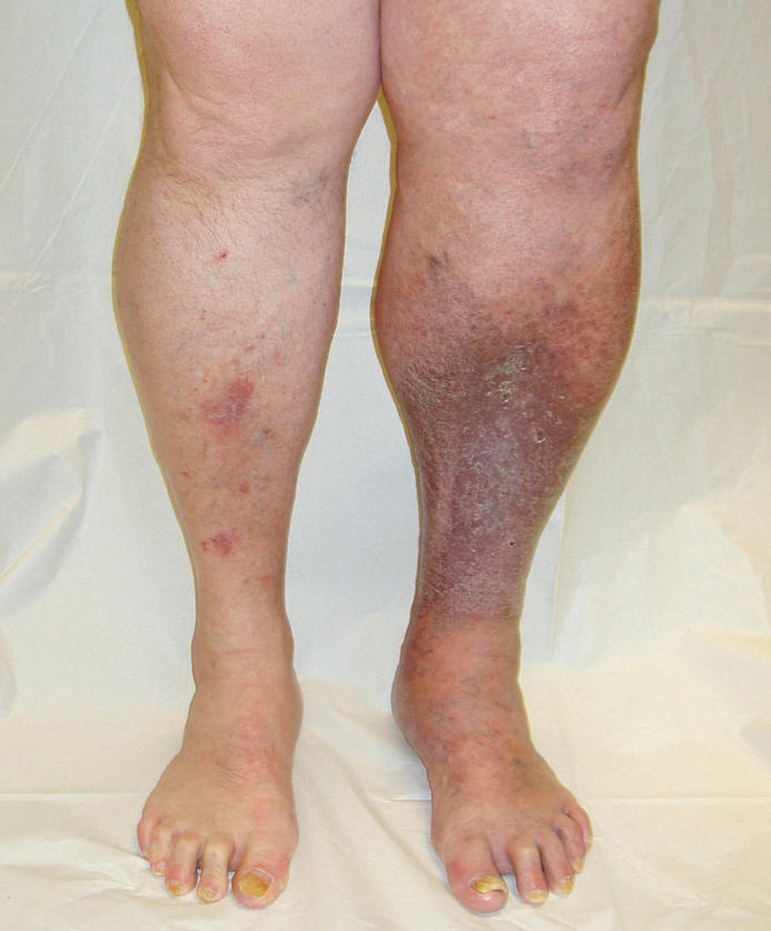 how to get rid of swelling in legs