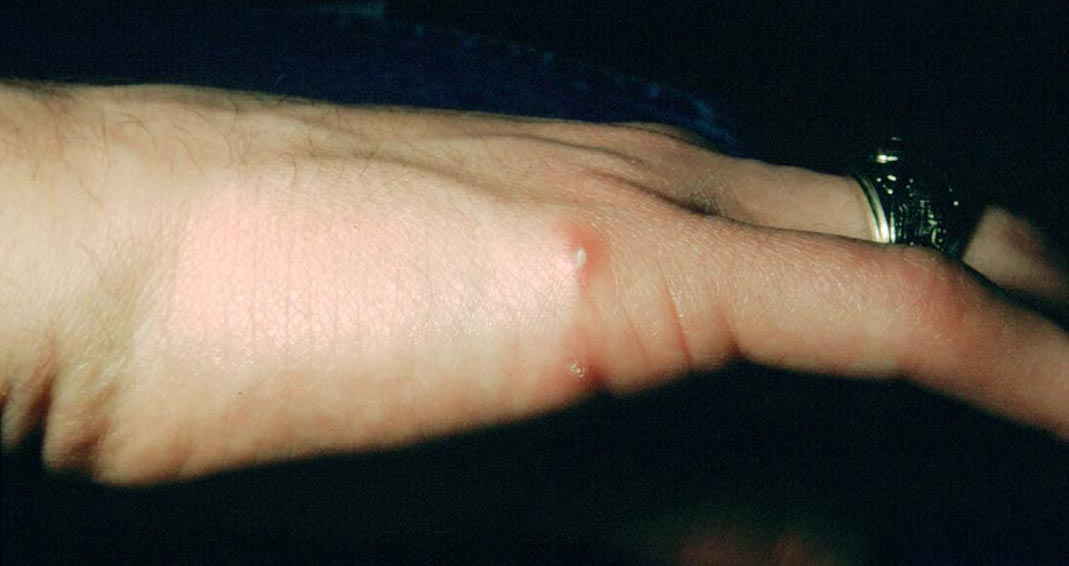 cat_Medical Pictures Info – Cat Scratch Disease