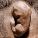 Cauliflower Ear Picture