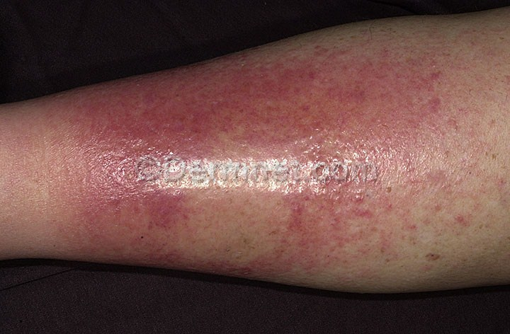 Cellulitis of The Legs | eCellulitis
