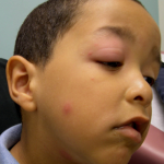 Cellulitis Eye