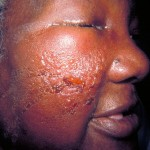 Cellulitis Face