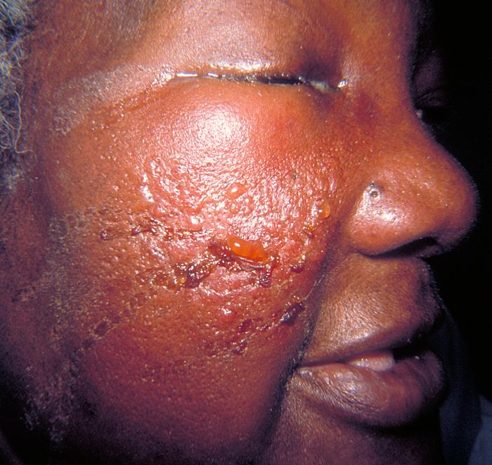 Cellcellulitis face
