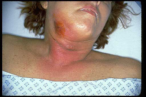 For Treatment of facial cellulitis
