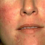 Consider, Treatment of facial cellulitis this