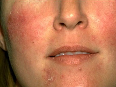 cellulitis on face #10