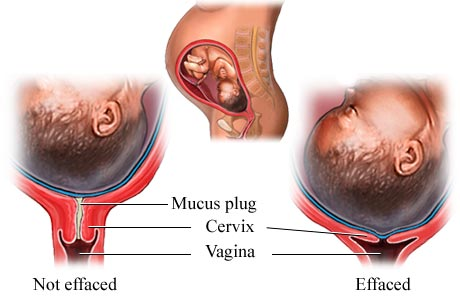 Medical pictures info cervical effacement cervical effacement ccuart Gallery