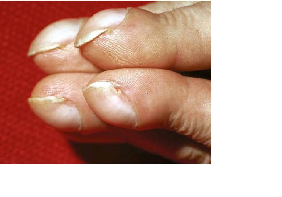 Medical Pictures Info – Clubbing Finger