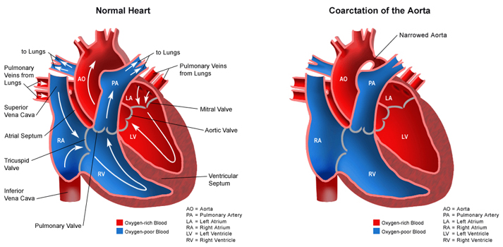 Medical Pictures Info – Coarctation Of The Aorta