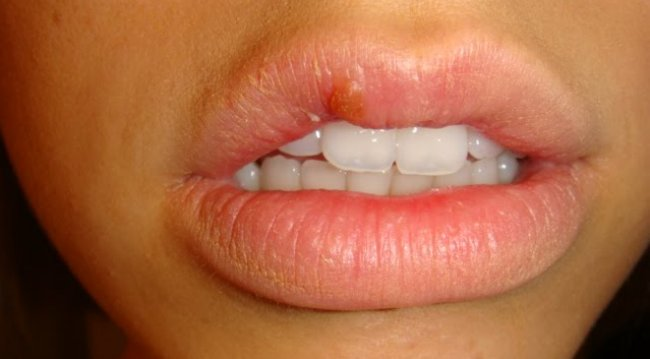 health wellness information cold sores oral herpes