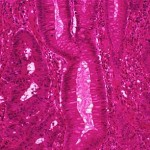 Colon Cancer Picture