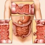 Colon Cancer Picture