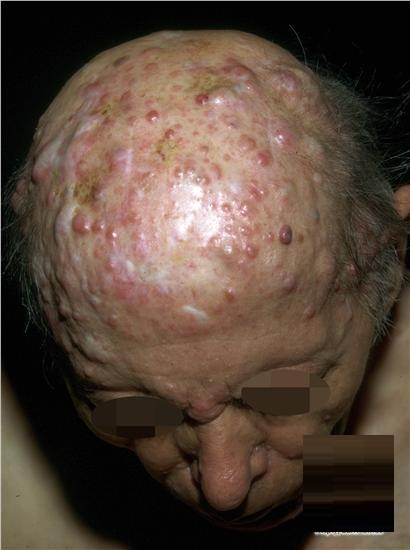 medical pictures info � cylindroma
