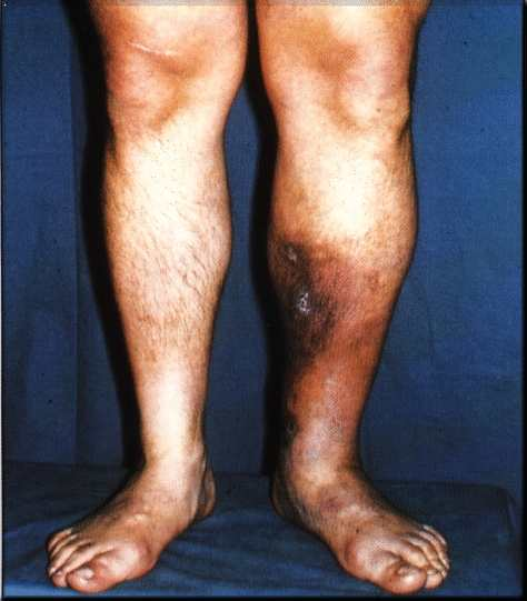 http://medicalpicturesinfo.com/wp-content/uploads/2011/08/Deep-vein-thrombosis-1.jpg