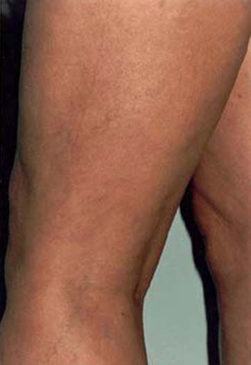 Deep Vein ThrombosisVenous Thrombosis Treatment