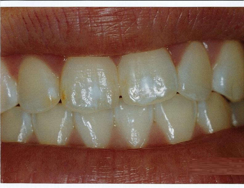 Medical Pictures Info Dental Fluorosis