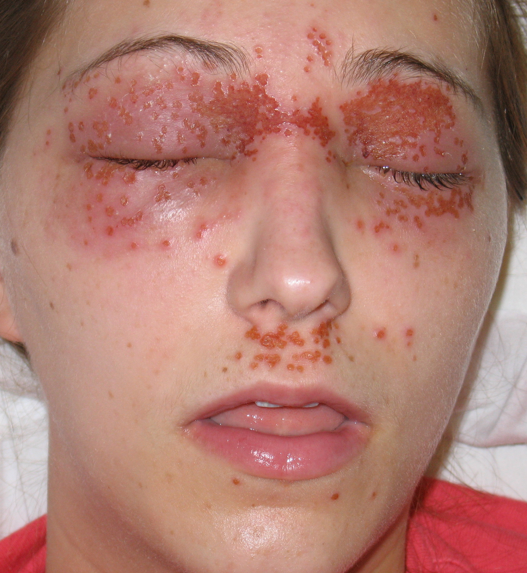 Herpes 2 in mouth treatment adults