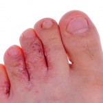Foot Infections