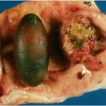 Gallbladder Carcinoma